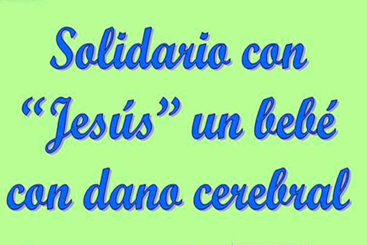 """Solidario con """"Jesús"""" un bebé con daño cerebral"""